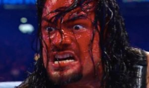 roman-reigns-blood-wrestlemania-20031943-1280x0